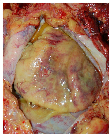 Exterior Of A Heart With Myocarditis (still In Body Cavity)